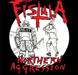 fistula northernaggression